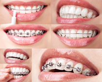 女子牙套展示摄影高清图片